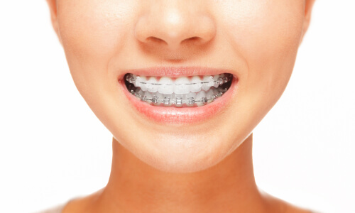 braces model smiling