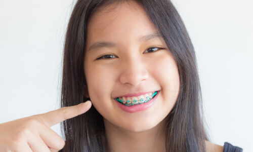 girl with braces pointing at smile