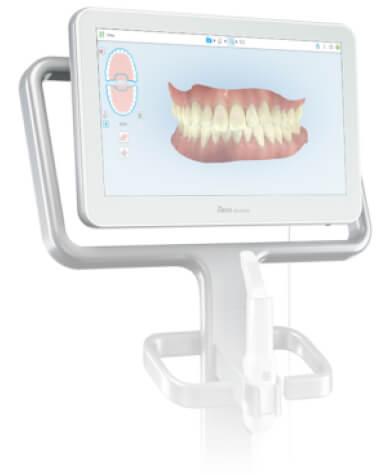 iTero intraoral scanner
